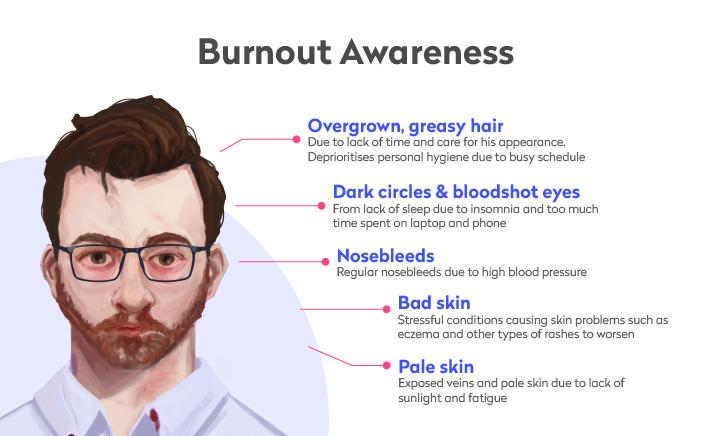 Recognising burnout symptoms